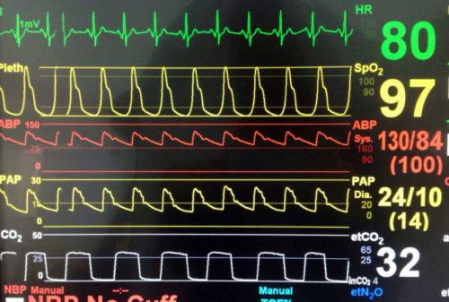 Le Complexe hospitalier de la Sagamie : les défis de la planification des besoins matières pour gérer les stocks du bloc opératoire